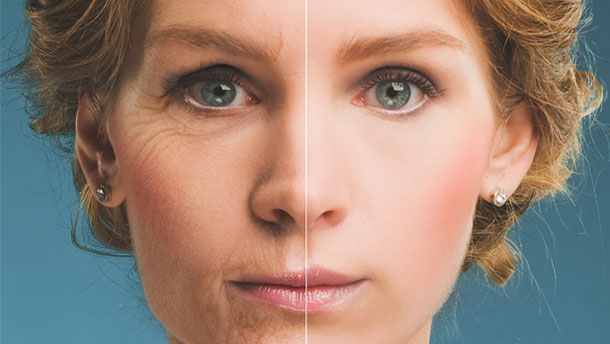 Ask the expert about…  Non-surgical Eyelift – Fibroblast